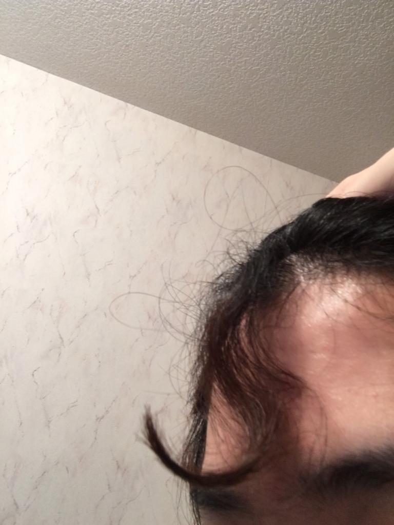くせ毛 ひどい